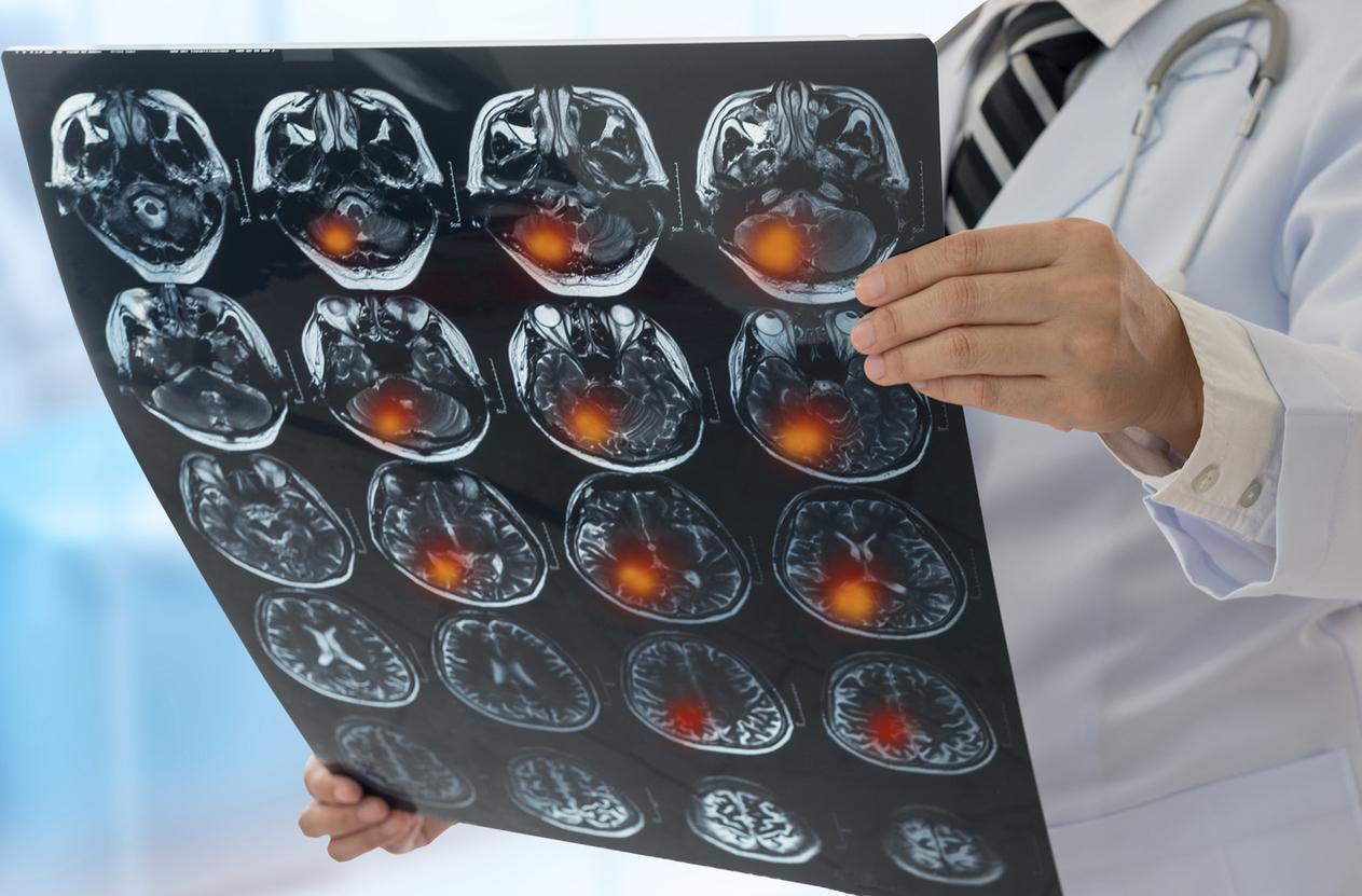 Global burden of neurological disease – Expert Q&A